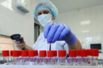 У Львові почали тестування людей на антитіла до коронавірусу