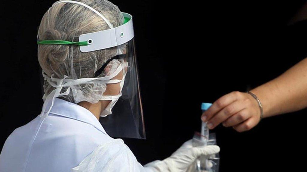 Померли 11 пацієнтів: у Бразилії припинили тестування препарату з хлорохіном для лікування коронавірусу