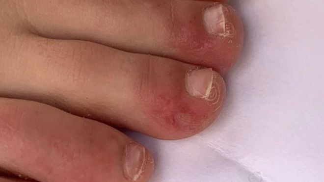 Сыпь при коронавирусе: какие места она поражает