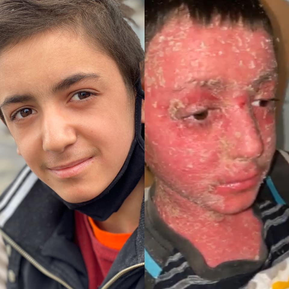 На Закарпатье чудом спасли брошенного ребенка с неизлечимой болезнью: «Если бы меня не нашли, я бы умер»