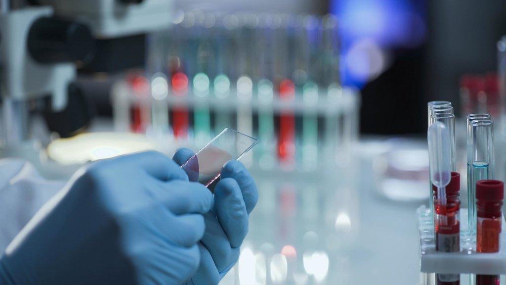 У Росії розповіли, як себе почувають випробувачі вакцини від коронавірусу