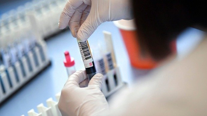 COVID-19: лікарня повинна робити безкоштовний ІФА-тест при плановій госпіталізації – Степанов