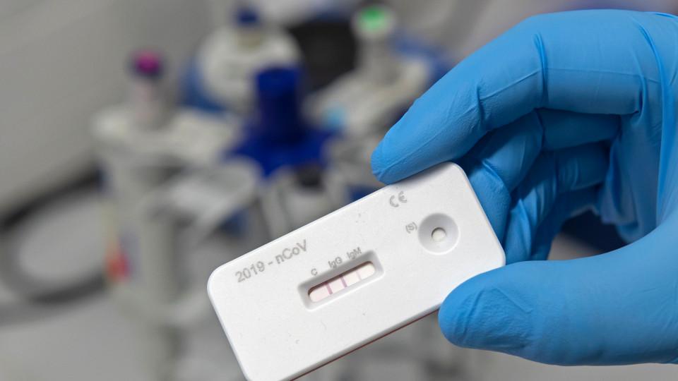 Новий експрес тест на COVID-19 – вчені