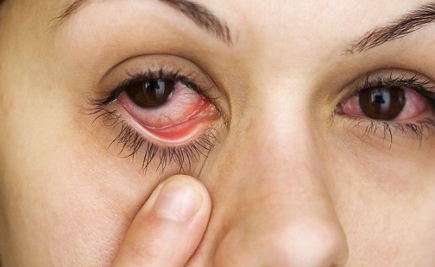 COVID-19 можно заразиться через конъюнктиву глаз- ученые