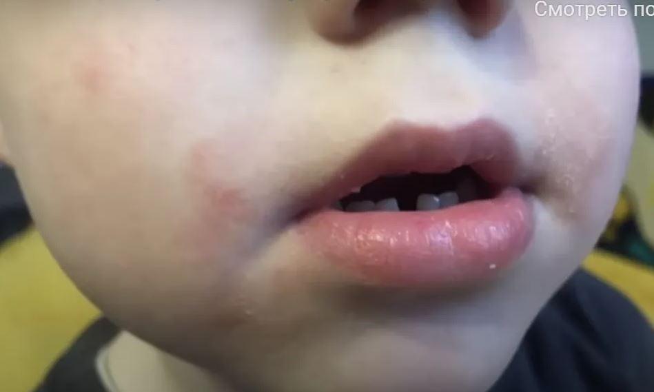 У дитсадку Луцька вихователі знущаються над дітьми – їм заклеюють рота і б'ють