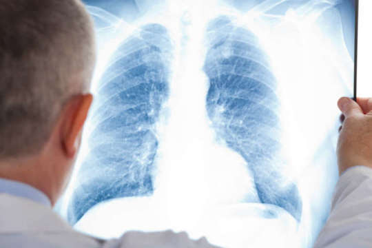 Лікарі назвали ознаки, які вказують на розвиток прихованої пневмонії