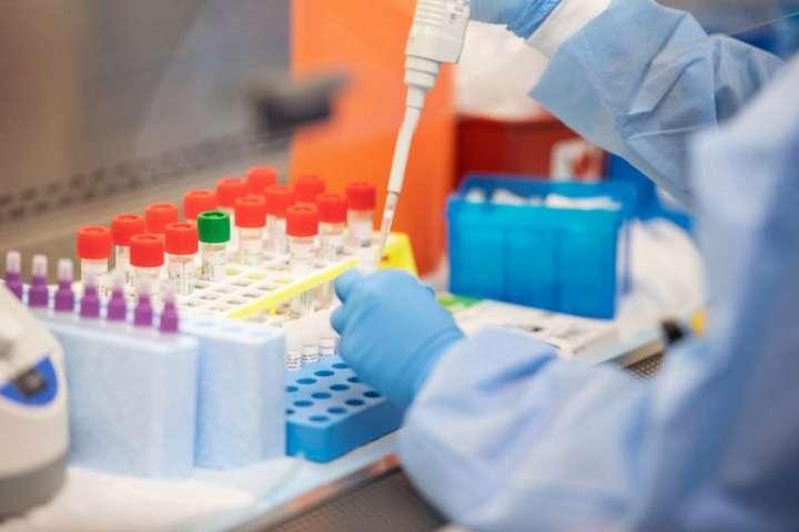 В Украине хотят ввести новый метод диагностики коронавируса