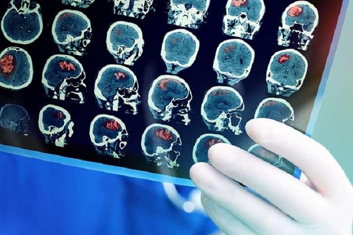 Вчені пояснили проблеми з мозком у хворих на Covid-19